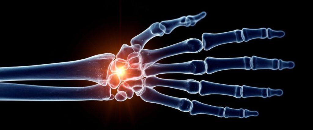 MSM bei Arthrose und weiteren Beschwerden einsetzen
